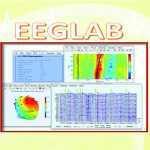 آموزش جعبه ابزار EEGLAB